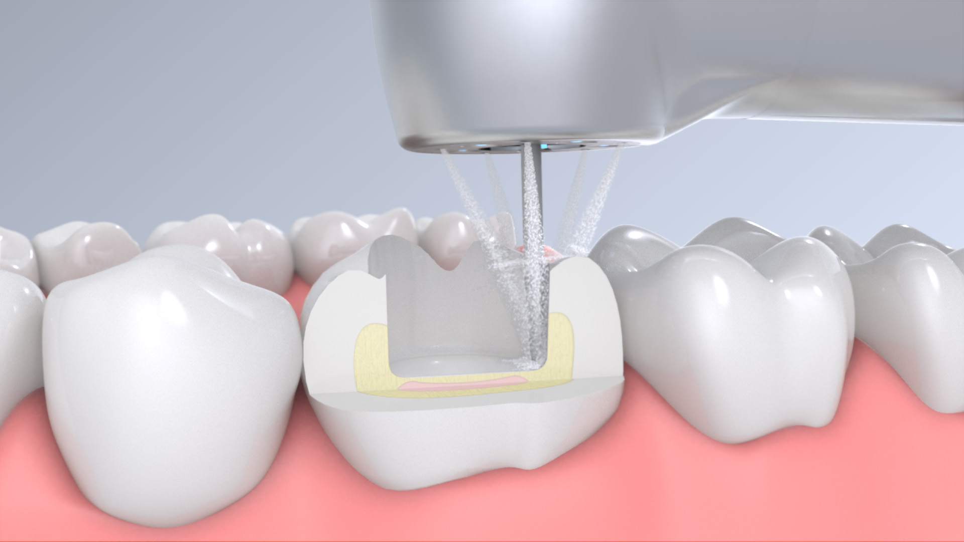 What's the purpose of the water spray at dental highspeed handpieces?