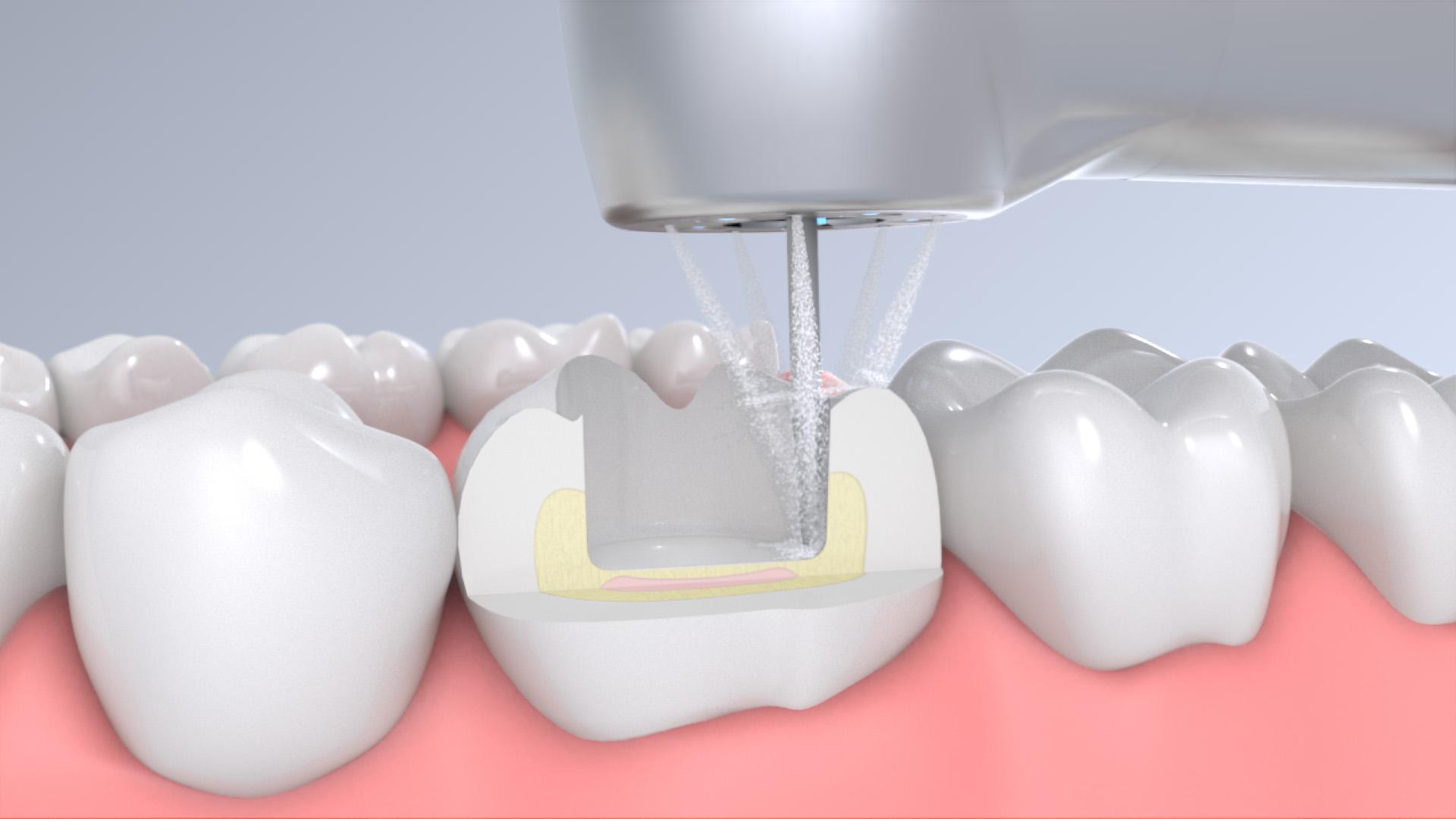 Welchen Zweck hat der Wasserspray in dentalen Schnelllaufwinkelstücken?