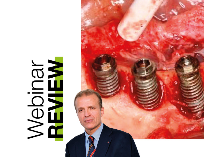 Webinar: Treatment of peri-implantitis surgical and non-surgical