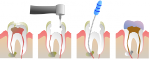 Root canal treatment procedure graph