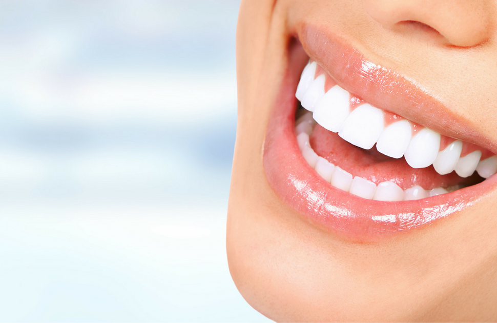 Get that perfect smile with Veneers!
