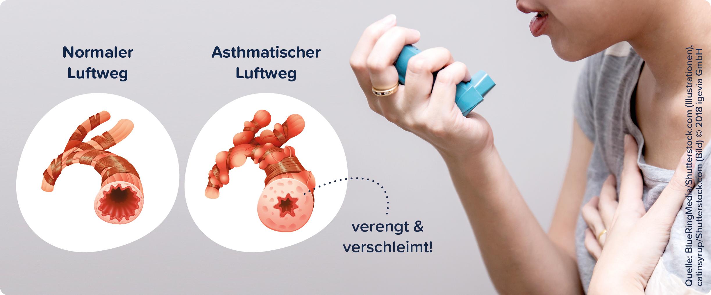 asthma allergie
