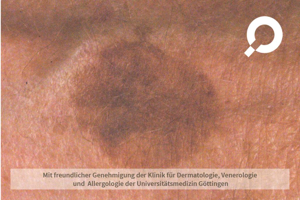 Verruca seborrhoica (Alterswarzen)