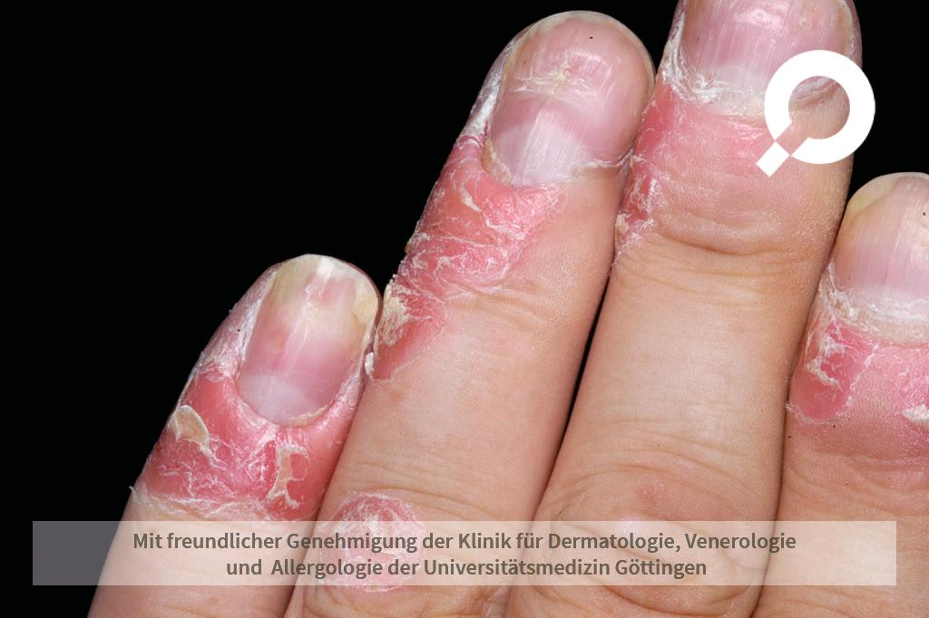 Psoriasis vulgaris (Schuppenflechte)
