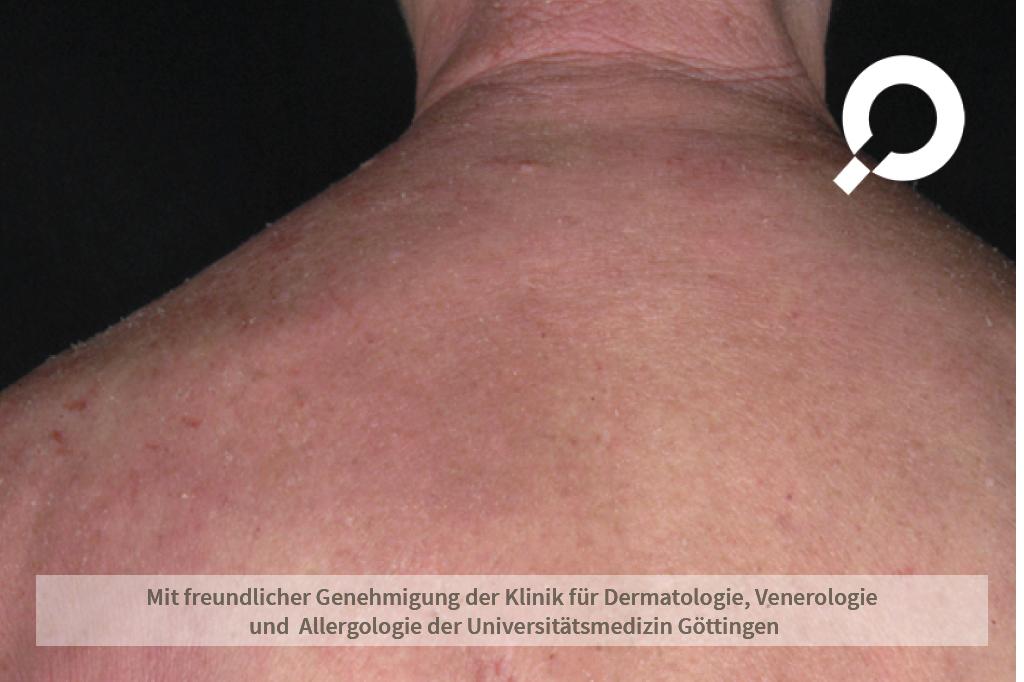 Atopische Dermatitis (Neurodermitis)