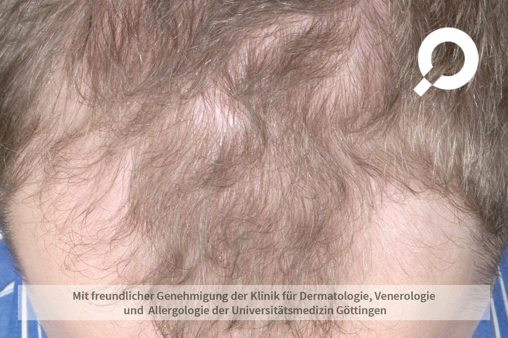 Androgenetische Alopezie