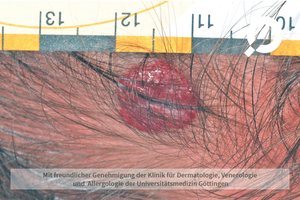 Hämangiom (Blutschwämmchen)