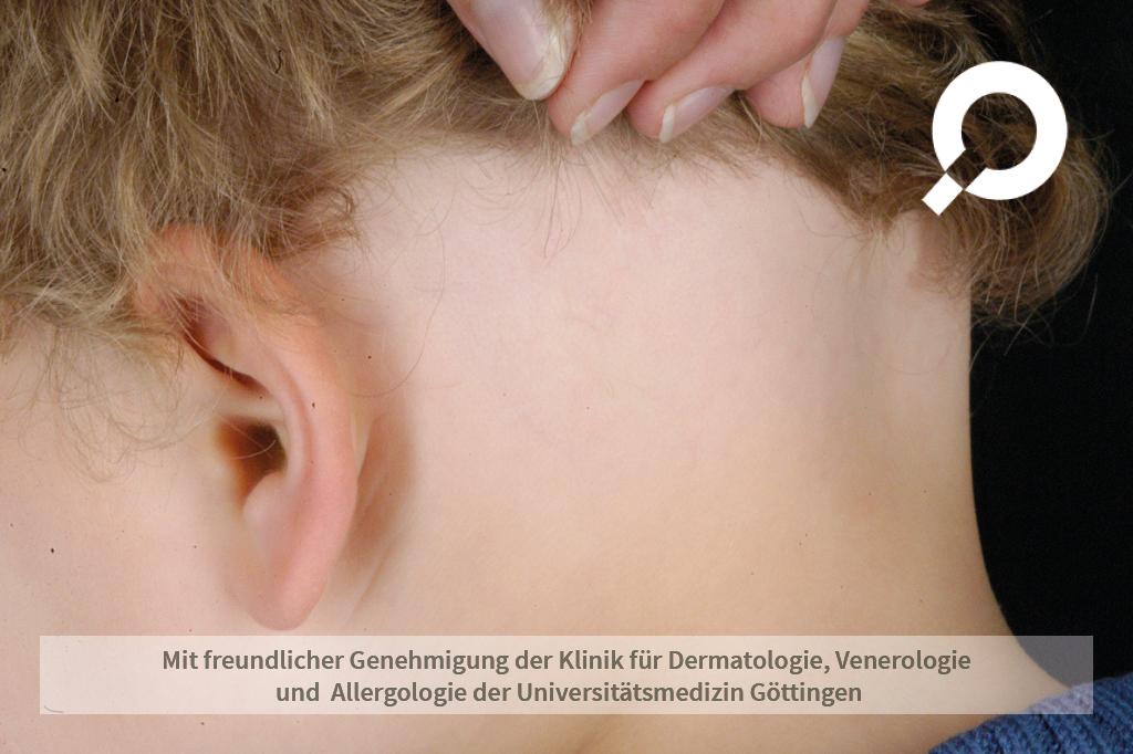 Alopecia areata (kreisrunder Haarausfall)