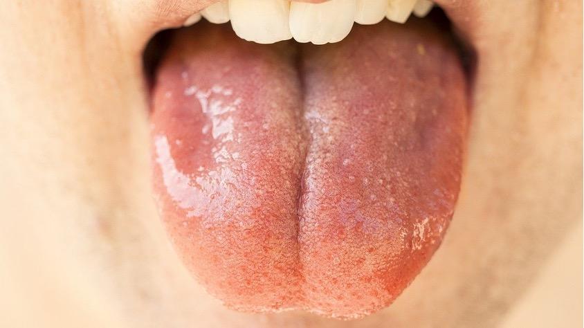 ausgestreckte Zunge