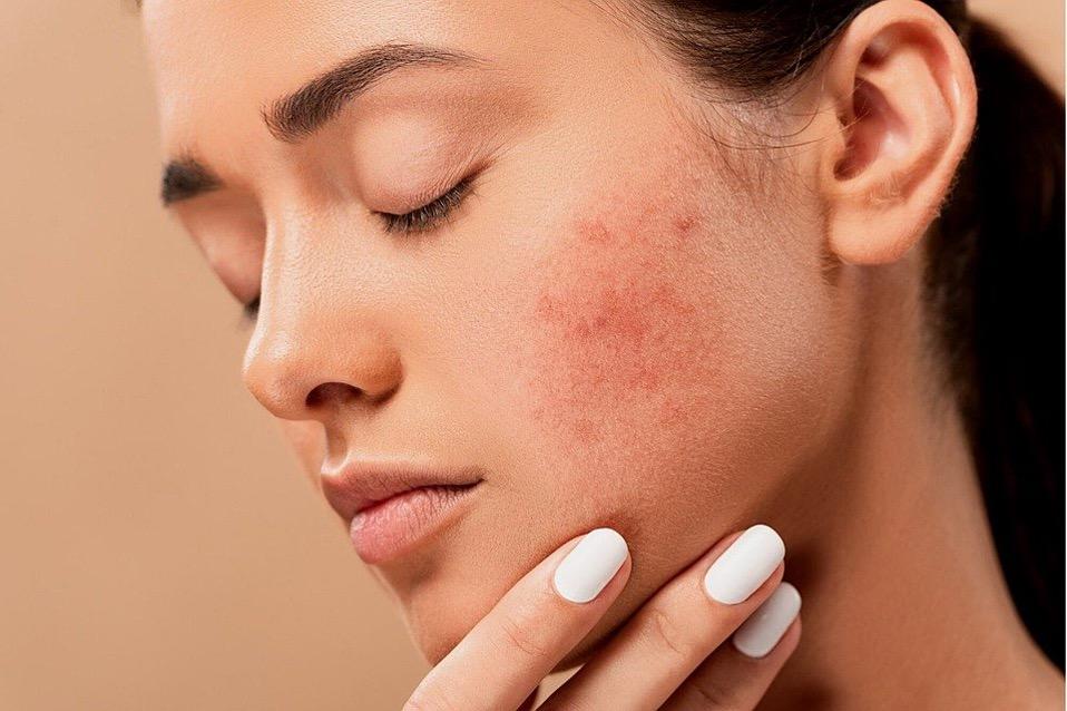 Frau mit unreiner Haut und Akne fasst sich ins Gesicht
