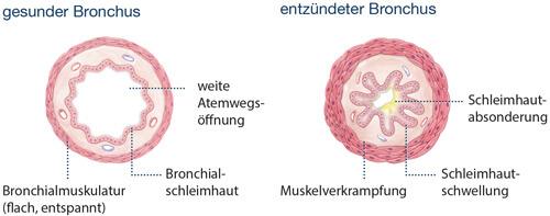 Abbildung gesunder und entzündeter Bronchus